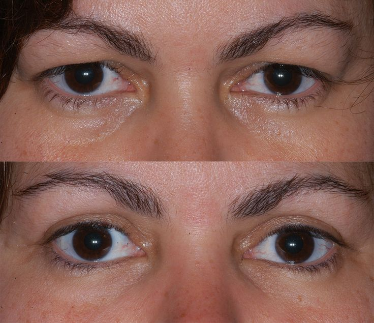 Boone eyelid surgery and non-surgical procedures.  #juvederm #eyelift #blepharoplasty #eyelid surgery