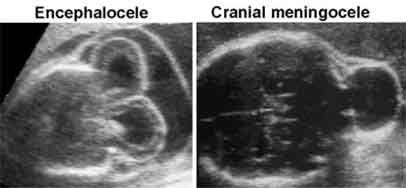 WK 2 L1 Encephalocele vs. Cephalocele REALLY GOOD WEBSITE FOR FETAL BRAIN CENTRAL NERVOUS SYSTEM - DIAGNOSIS OF FETAL ABNORMALITIES - THE 18-23