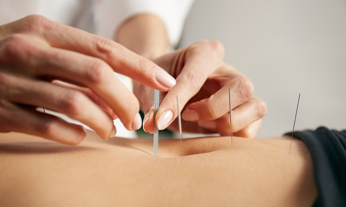 Article Body: The sight of piercing needles through the skin in specific areas of the body may appear to be painful, but acupuncture is actually an ancient form of pain relief treatment that improves the flow of energy throughout the body. Acupuncture originated in China thousands of years ago...