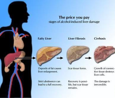 Analysis of the Fatty Liver Bible. http://liverbasics.com/fatty-liver-bible-review.html