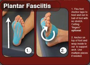 I have plantar fasciitis and using this method of taping my foot is the only thing that has let me run without pain. I use the KT tape brand.