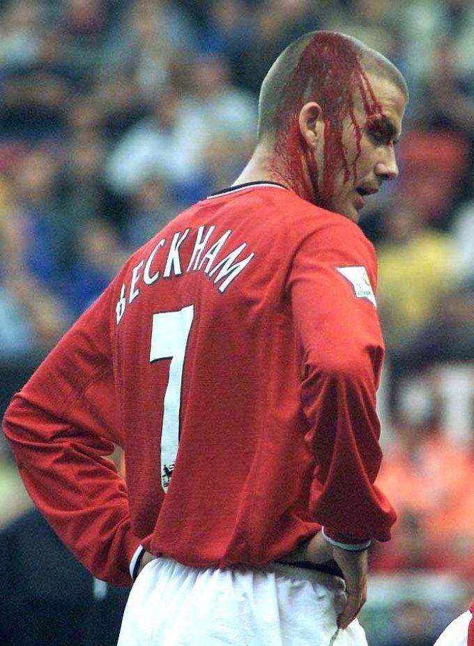 """15 Photos Of Bloody Footballers"" Saint David bleeds like you or I"