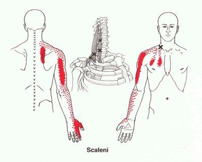 musculus Scalenes  Als er in de Scheve spier triggerpoints ontstaan, ontwikkelen zich ook triggerpoints in spieren met een tegengestelde functie. Er zullen dus ook uitademingspieren, zoals de buikspieren en strekkers van het hoofd betrokken raken. Zoals in de afbeelding is te zien geeft de scheve spier een uitstralingsgebied in de borst en rond het schouderblad. Bovendien heeft deze spier invloed op de spieren van de arm en de duim en wijsvinger.