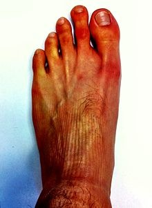 Morton's toe - Although commonly described as a disorder, it is sufficiently common to be considered a normal variant of foot shape