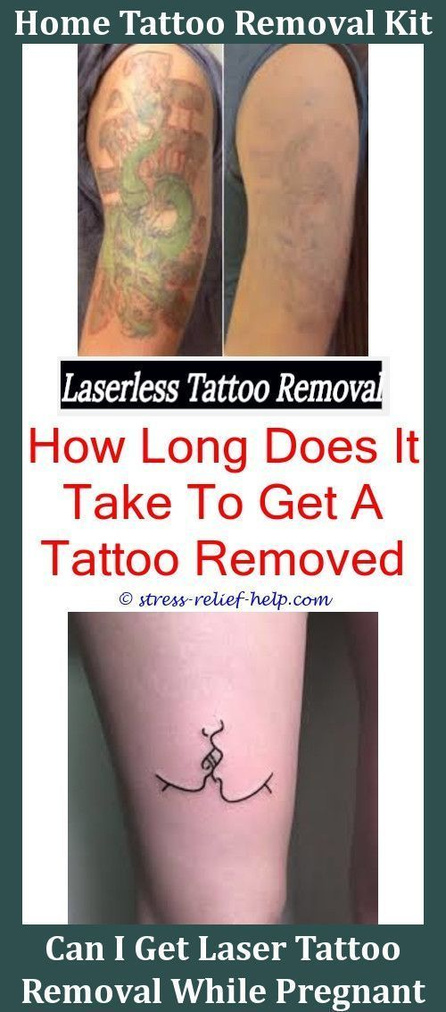 Can Tattoos Be Removed Completely Does Laser Removal For Tattoos ...