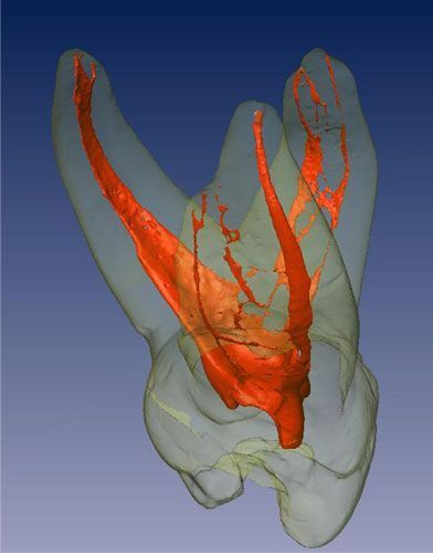 3D image of the pulp chamber of a tooth showing how difficult root canal therapy is.