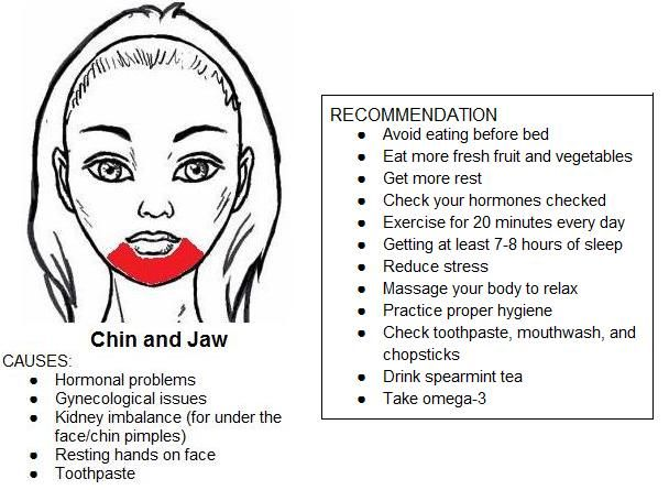 acne map remedies Accordingly, to remedy the acne problem based on the acne face map, you must  focus on eating more fruits and vegetables and cutting out all the junk from the.