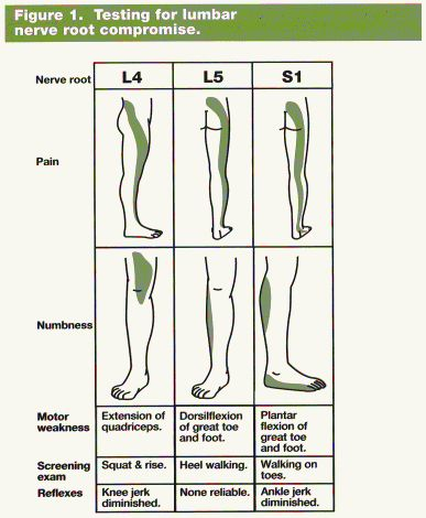 sensory nerves of the foot - Google Search