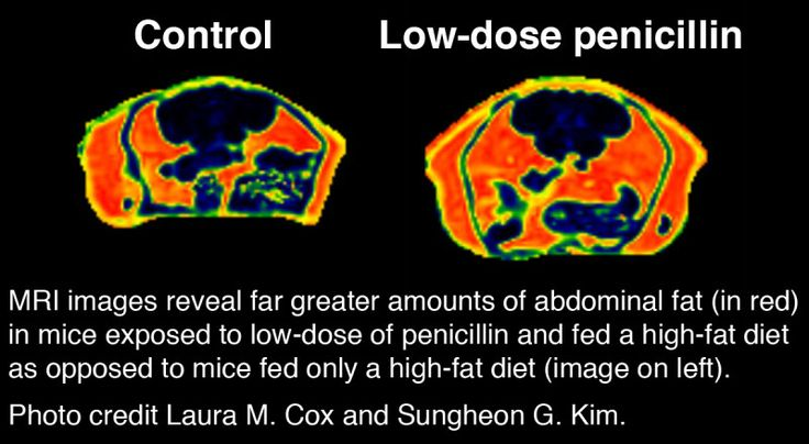 Antibiotics induce obesity through altered gut flora.