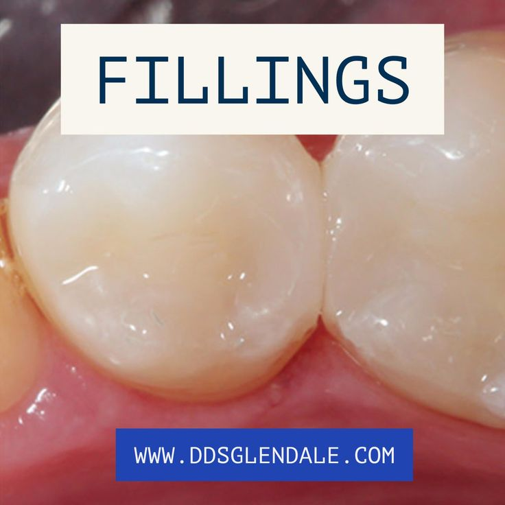 Dental fillings are placed in teeth after cavities are removed in order to replace the missing area of the tooth.       #fillings #dentalfillings #cavities #glendaledentist #glendalecalifornia #LeoAghajanianDDS