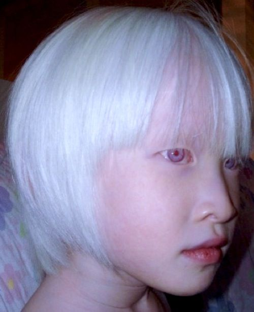 Albinism : Causes, Types & Symptoms - Healthline