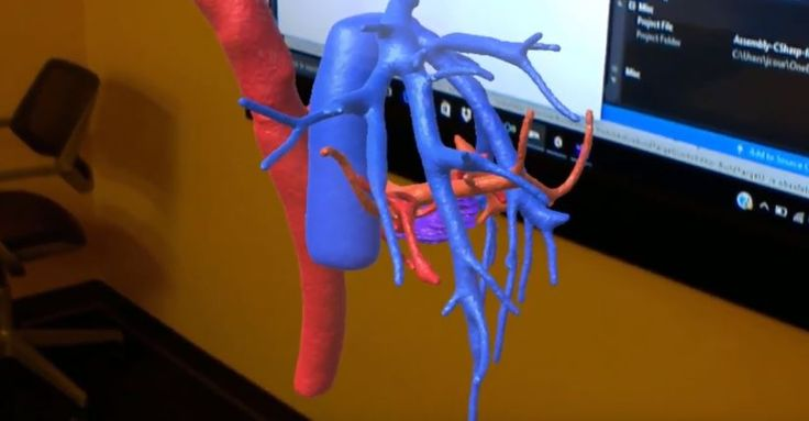 Using Augmented Reality Applications to Visualize 3D Radiology Images | UCSF Radiology
