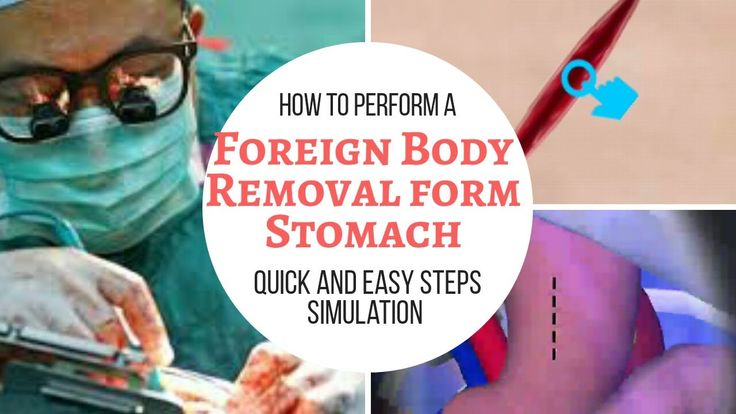 Stomach Surgery simulator removal of Foreign Body
