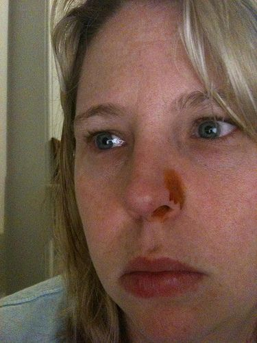 http://bbishare.com/what-is-a-cold-sore.html Exactly what is a cold sore? Discover right here precisely what cold sores are and much more. 96/365: death to cold sores