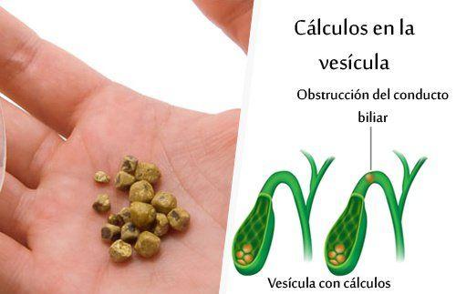 7 Jugos e infusiones naturales para eliminar cálculos biliares http://mejorconsalud.com/7-jugos-e-infusiones-naturales-para-eliminar-calculos-biliares/