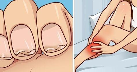 Heb jij vaak last van kramp in je benen? Lees dít dan snel even!