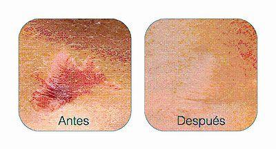 El gel de silicona es lo último para combatir las marcas que se pueden formar por cirugías, heridas traumáticas, vacunación, quemaduras, varicela o acné.La