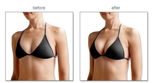 Push up bras after breast reconstruction