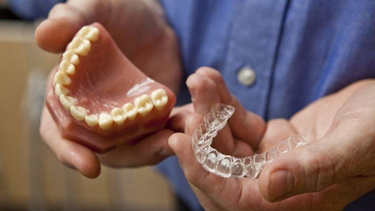 Dental Braces Houston: 4 Types of Dental Braces (via angieslist.com) - http://www.angieslist.com/articles/4-types-dental-braces.htm  #braces #dental #teeth #heath #houston