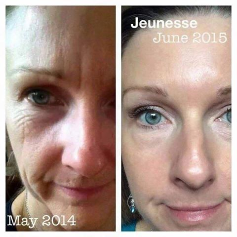 Luminesce Serum Before and After. You can buy it www.beauty4faces.jeunesseglobal.com