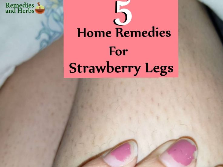 Strawberry legs, medically termed as open comedone, are visible dark pores on the legs that resembles dot like spots found in strawberries. This condition is caused mostly due to clogged hair follicles. The pores get clogged due to several reasons like dead skin cells, dirt, oil, sebum and ingrown hair etc. Poor shaving is one of the common reasons for strawberry legs. When you use a dull razor often it doesn't pull out the hair follicle completely. When this open comedone gets exposed to…