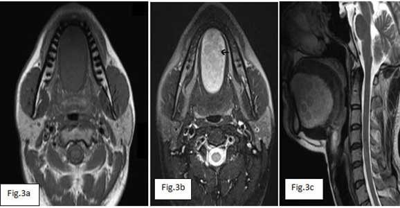 """Sublingual Dermoid Cyst: Fig 3a, b and c: T1W axial (3a), T2W axial (3b) and T2W sagittal (3c) MRI scans show well circumscribed mass lesion sharply circumscribed cystic mass lesion in floor of mouth, displacing mylohyoid muscle inferiorly, which appear hypointense on T1W + hyperintense on T2W images. T2-weighted MRI image shows characteristic appearances of midline dermoid cyst in floor of mouth w  """"sack of marbles"""" appearance due to presence of fat globules (arrowheads) within  dermoid…"""