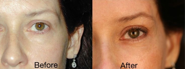 Endoscopic brow lift, bilateral lower (fat repositioning and skin pinch) blepharoplasty, bilateral upper blepharoplasty.