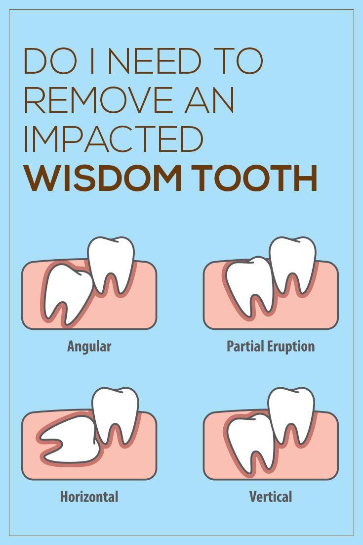 Impacted wisdom teeth image by safia hanif on impacted
