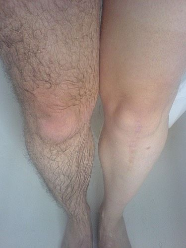 How do i convince my parents to let me remove my leg hair?