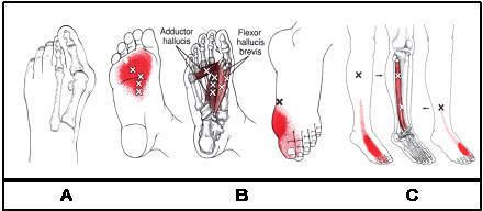foot pain trigger points - Google Search