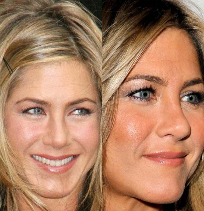 Did Jennifer Aniston have a plastic surgery?