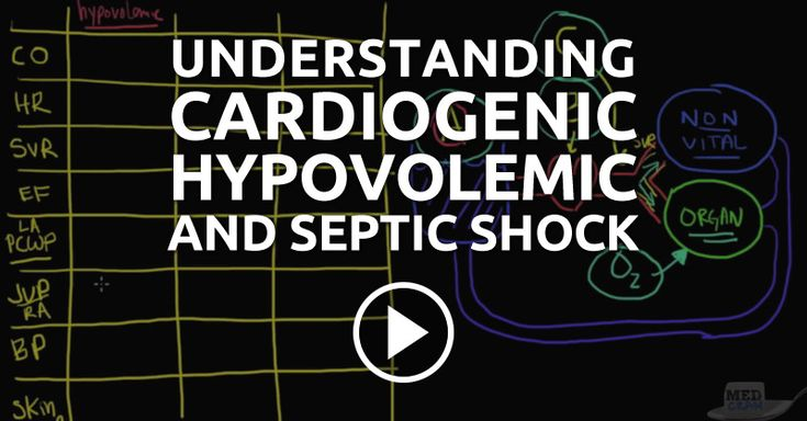 Roger Seheult, MD provides a clear explanation and provides cute drawings about cardiogenic shock, hypovolemic shock, and septic shock in about 15 minutes.