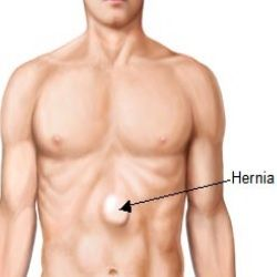 can weight loss cure hernia