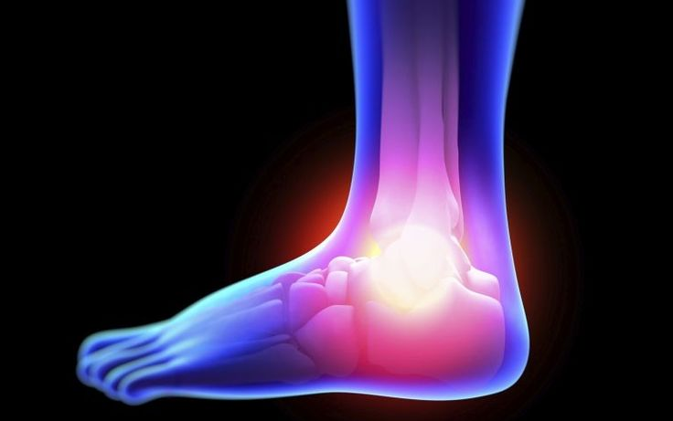 Is There a Real Way to End Neuropathy Pain?