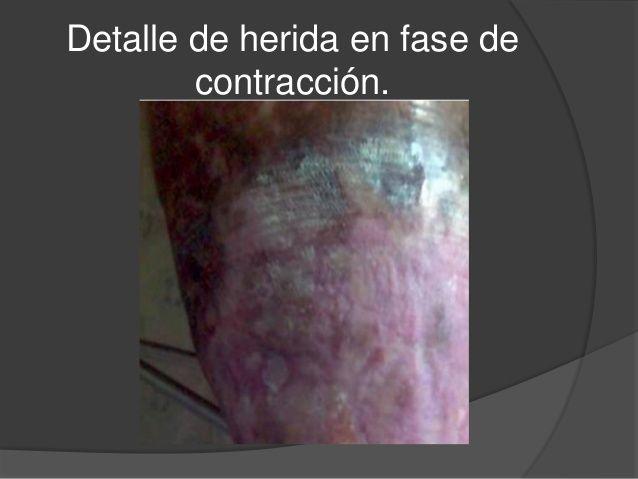 Fases De La Cicatrizacion Normal Enfermeria Basica Enfermeria Fisiología