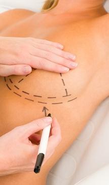 Zapraszamy: http://agklinik.com/oferta/chirurgia-estetyczna/piersi/powiekszanie-biustu-tluszczem-implanty-preparatem-macrolane/