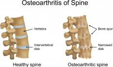 An illustration of a healthy spine and one with spinal osteoarthritis, which is also called lumbar spondylosis when it occurs in the lower b...  (advanced L-4, L5 spondylosis)