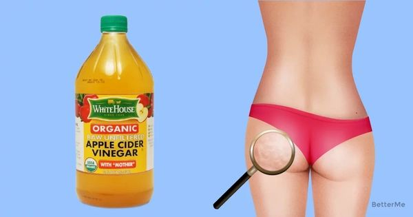 Most of women have this problem. Cellulite can be caused by lots of reasons and it is hard to avoid it without training. There are a lot of lotions that
