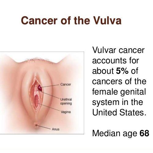 9 best images about Vulvar Cancer on Pinterest | Cancer awareness ...