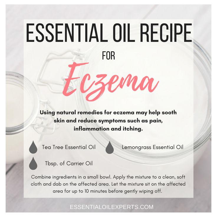 Combat eczema symptoms with this simple essential oils for eczema recipe.