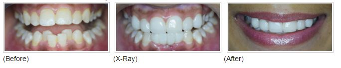 #Smile Makeover with metal free porcelain #crowns