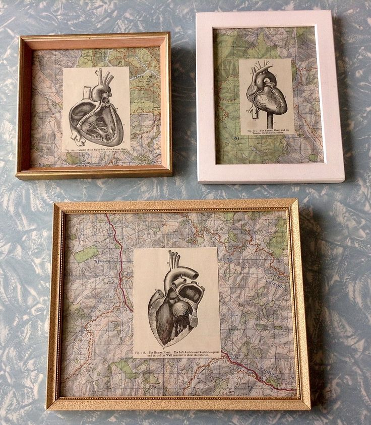 Vintage map and vintage physiology book illustration in old frames