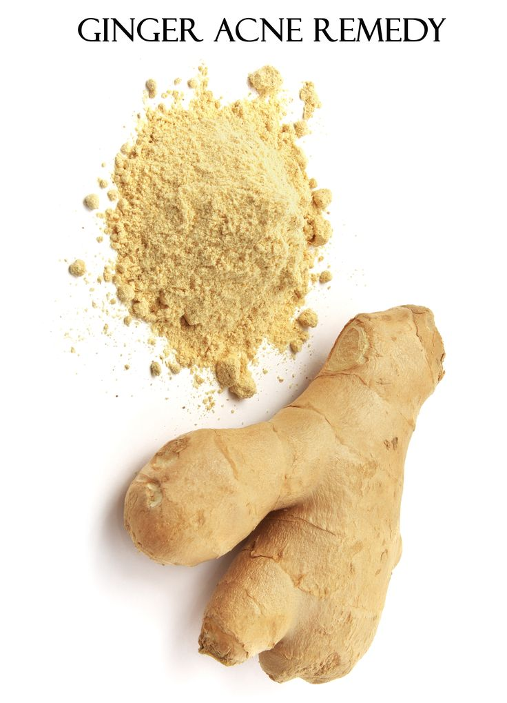 ginger acne remedy