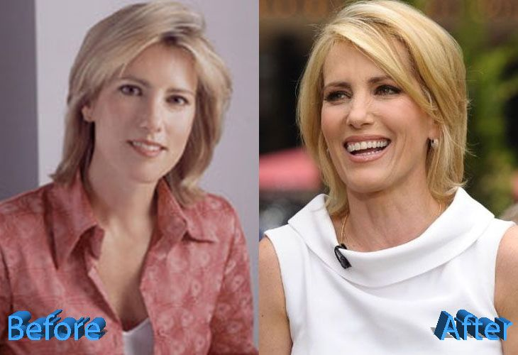 Laura Ingraham Plastic Surgery Just Media Gossips