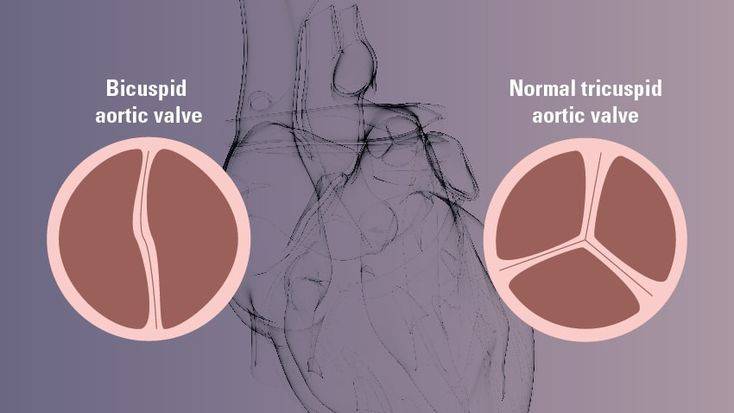 5 Basics to Know About Bicuspid Aortic Valve Disease