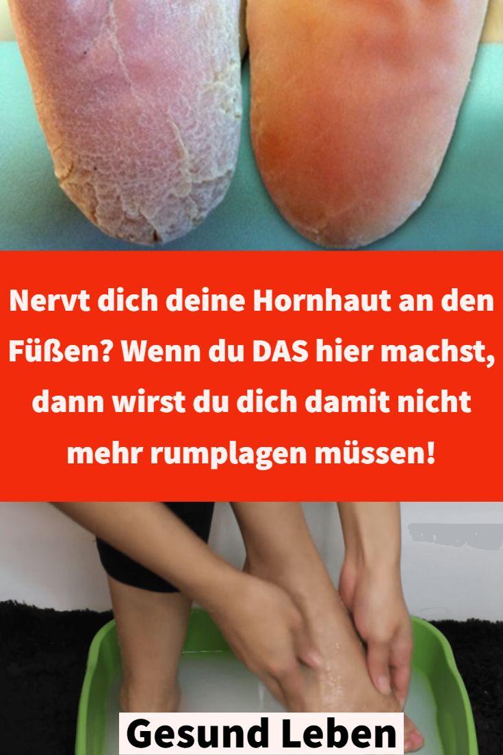Nervt dich deine Hornhaut an den Füßen? Wenn du DAS hier machst…
