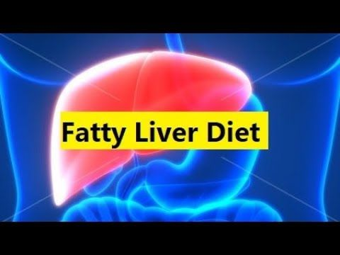 Fatty Liver Diet - How To Cure Fatty Liver With Diet