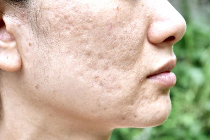 Best Scar Removal Creams: Tretaments That Work