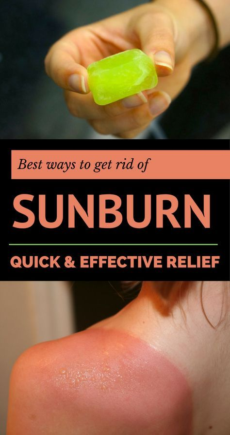 Best ways to get rid of sunburn: quick and effective relief.