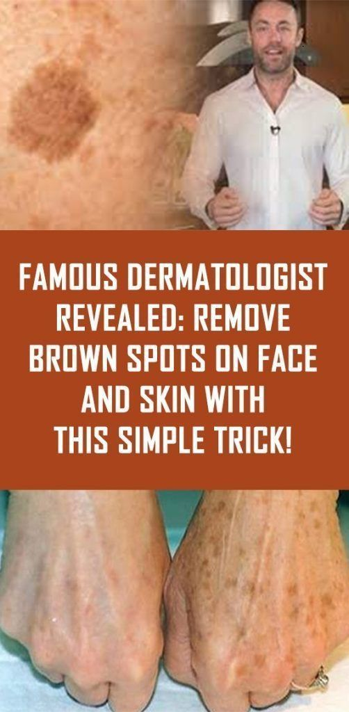 KNOWN DERMATOLOGIST DISCOVERED: REMOVE BROWN POINTS ON FACE AND SKIN …